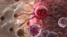 The Final Round in the War on Cancer